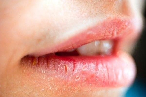 عوارض کم خونی عوارض کم خونی عوارض کم خونی Warning Signs Your Lips Are Telling You 1