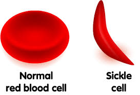 علائم کم خونی علائم کم خونی علائم کم خونی images 3