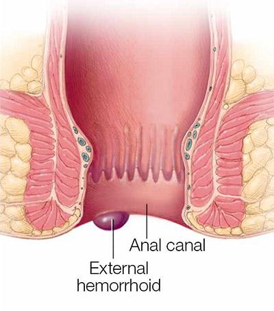 درمان بواسیر در طب سنتی درمان بواسیر در طب سنتی درمان بواسیر در طب سنتی external hemorrhoids