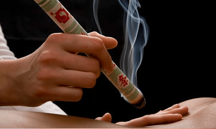 طب سنتی چینی طب سنتی چینی تاریخچه طب سنتی چینی moxibustion therapy