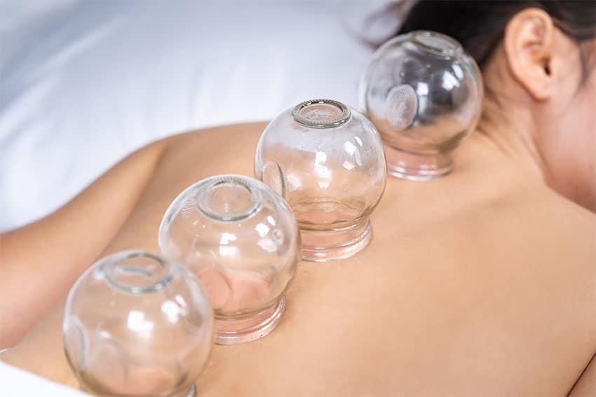 درمان ام اس با طب سنتی درمان ام اس با طب سنتی درمان ام اس با طب سنتی Is Cupping Therapy Effective for TMJ